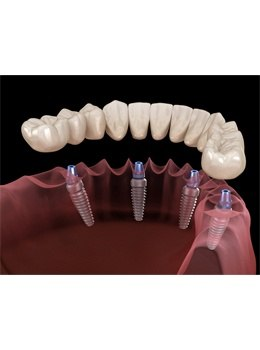 All-on-4 dental implants animation