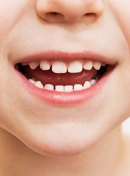 Closeup of child's healthy smile