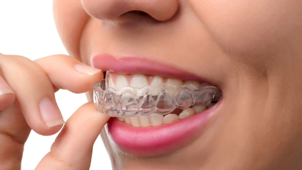 Dental Implants In Virginia Beach