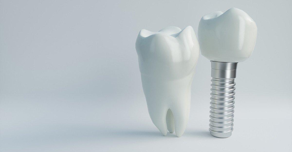 Longevity-of-Dental-Implants